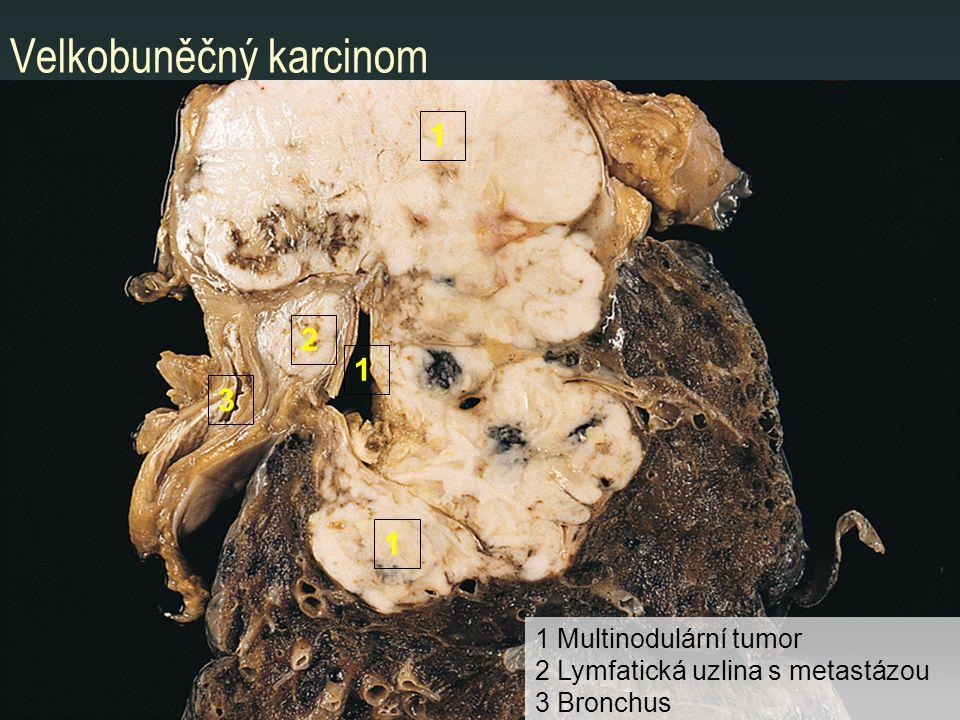 Velkobuněčný karcinom 1 1 2 1 3 1 Multinodulární tumor 2 Lymfatická uzlina s metastázou 3 Bronchus