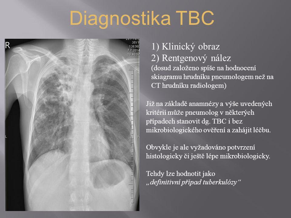 Diagnostika TBC 1) Klinický obraz 2) Rentgenový nález (dosud založeno spíše na hodnocení skiagramu hrudníku pneumologem než na CT hrudníku radiologem) Již na základě anamnézy a výše uvedených kritérií může pneumolog v některých případech stanovit dg.