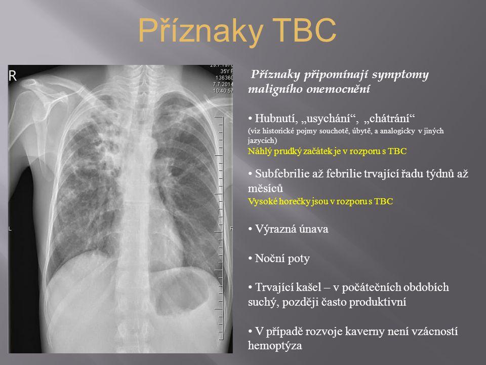 """Příznaky TBC Příznaky připomínají symptomy maligního onemocnění Hubnutí, """"usychání , """"chátrání (viz historické pojmy souchotě, úbytě, a analogicky v jiných jazycích) Náhlý prudký začátek je v rozporu s TBC Subfebrilie až febrilie trvající řadu týdnů až měsíců Vysoké horečky jsou v rozporu s TBC Výrazná únava Noční poty Trvající kašel – v počátečních obdobích suchý, později často produktivní V případě rozvoje kaverny není vzácností hemoptýza"""