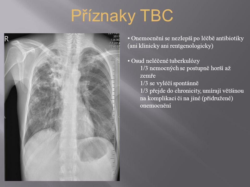 Příznaky TBC Onemocnění se nezlepší po léčbě antibiotiky (ani klinicky ani rentgenologicky) Osud neléčené tuberkulózy 1/3 nemocných se postupně horší až zemře 1/3 se vyléčí spontánně 1/3 přejde do chronicity, umírají většinou na komplikaci či na jiné (přidružené) onemocnění