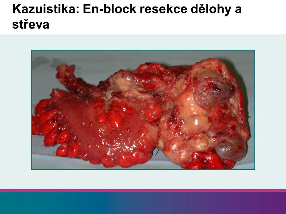 Kazuistika: En-block resekce dělohy a střeva