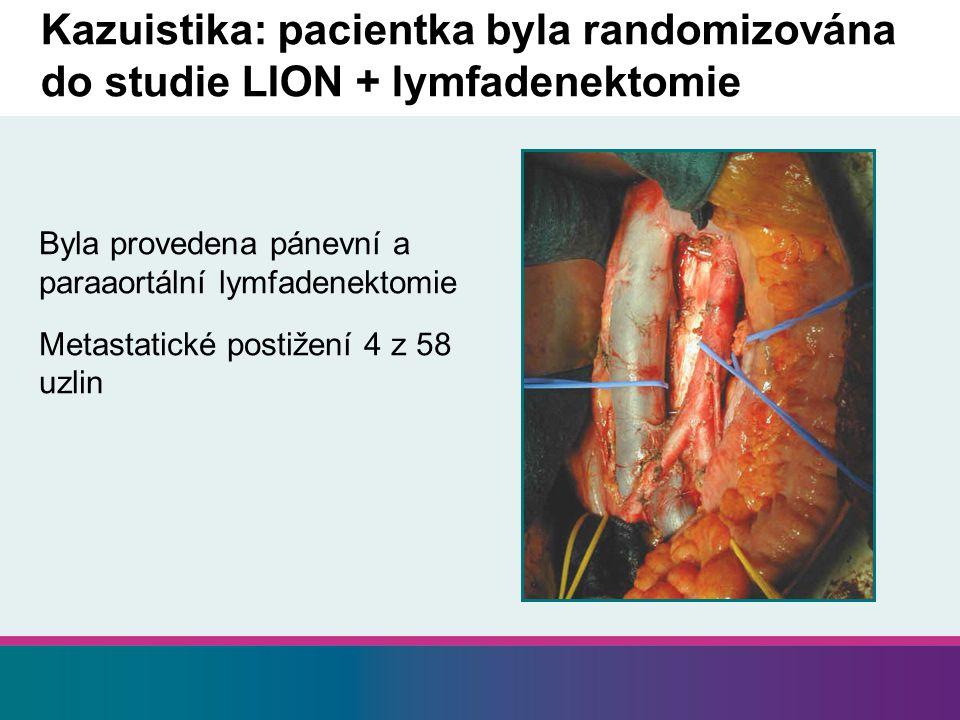 Byla provedena pánevní a paraaortální lymfadenektomie Metastatické postižení 4 z 58 uzlin Kazuistika: pacientka byla randomizována do studie LION + lymfadenektomie