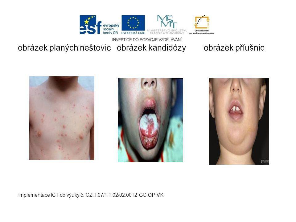 obrázek planých neštovic obrázek kandidózy obrázek příušnic Implementace ICT do výuky č.