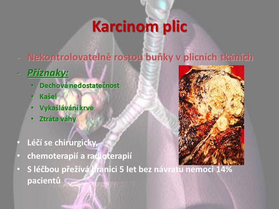 Karcinom plic -Nekontrolovatelně rostou buňky v plicních tkáních -Příznaky: Dechová nedostatečnost Dechová nedostatečnost Kašel Kašel Vykašlávání krve