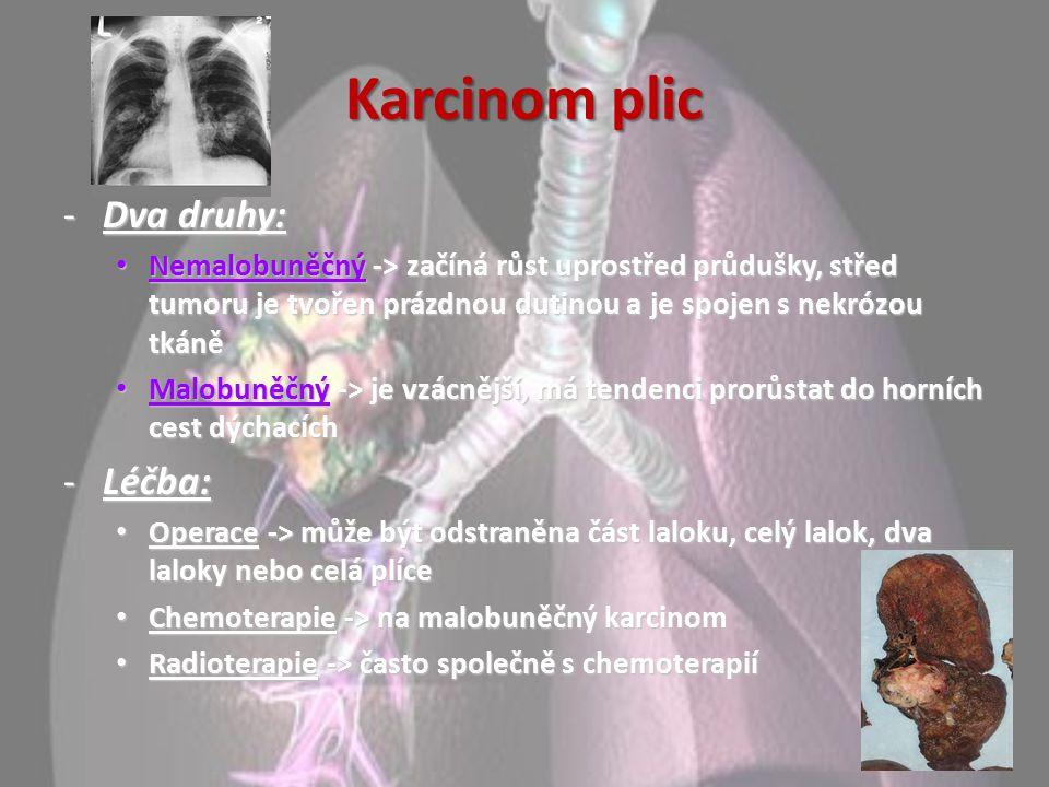 Karcinom plic -Dva druhy: Nemalobuněčný -> začíná růst uprostřed průdušky, střed tumoru je tvořen prázdnou dutinou a je spojen s nekrózou tkáně Nemalo