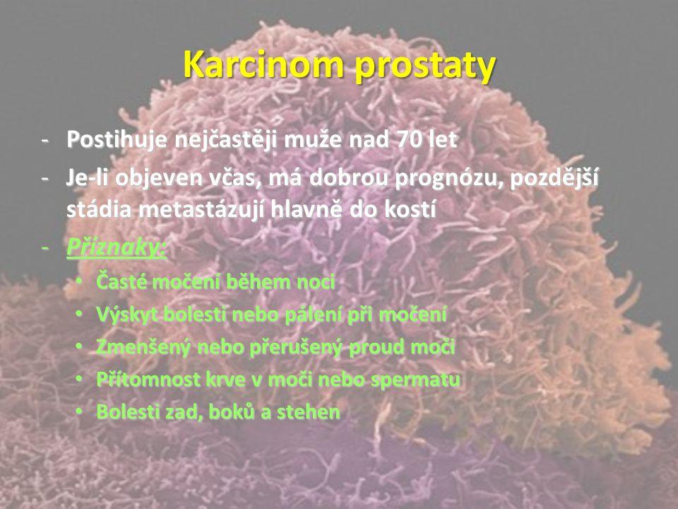 Karcinom prostaty -Postihuje nejčastěji muže nad 70 let -Je-li objeven včas, má dobrou prognózu, pozdější stádia metastázují hlavně do kostí -Příznaky