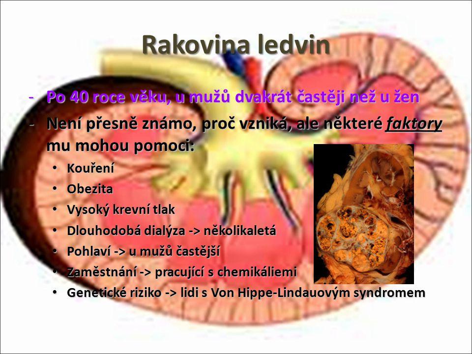 Rakovina ledvin -Po 40 roce věku, u mužů dvakrát častěji než u žen -Není přesně známo, proč vzniká, ale některé faktory mu mohou pomoci: Kouření Kouře