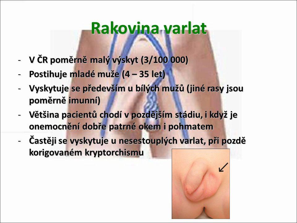 Rakovina varlat -V ČR poměrně malý výskyt (3/100 000) -Postihuje mladé muže (4 – 35 let) -Vyskytuje se především u bílých mužů (jiné rasy jsou poměrně