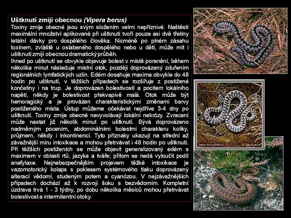 Uštknutí zmijí obecnou (Vipera berus) Toxiny zmije obecné jsou svým složením velmi nepříznivé.