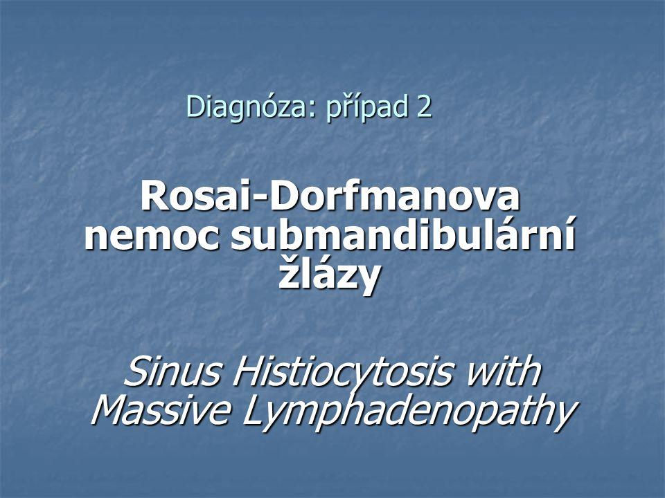Diagnóza: případ 2 Rosai-Dorfmanova nemoc submandibulární žlázy Sinus Histiocytosis with Massive Lymphadenopathy
