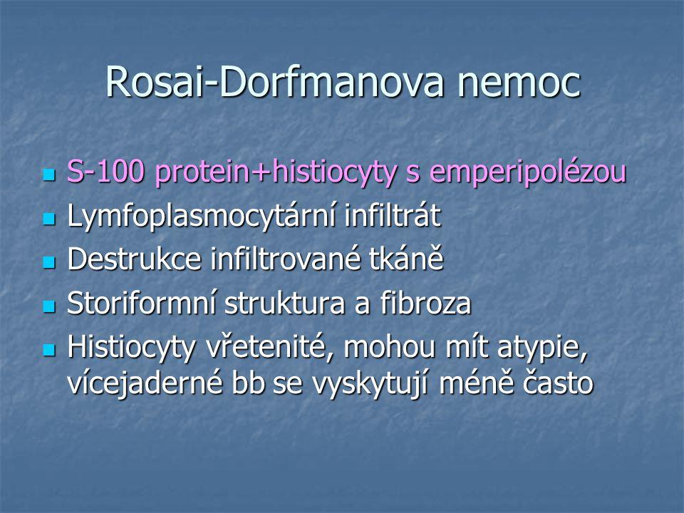 Rosai-Dorfmanova nemoc S-100 protein+histiocyty s emperipolézou S-100 protein+histiocyty s emperipolézou Lymfoplasmocytární infiltrát Lymfoplasmocytár