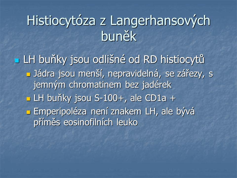 Histiocytóza z Langerhansových buněk LH buňky jsou odlišné od RD histiocytů LH buňky jsou odlišné od RD histiocytů Jádra jsou menší, nepravidelná, se