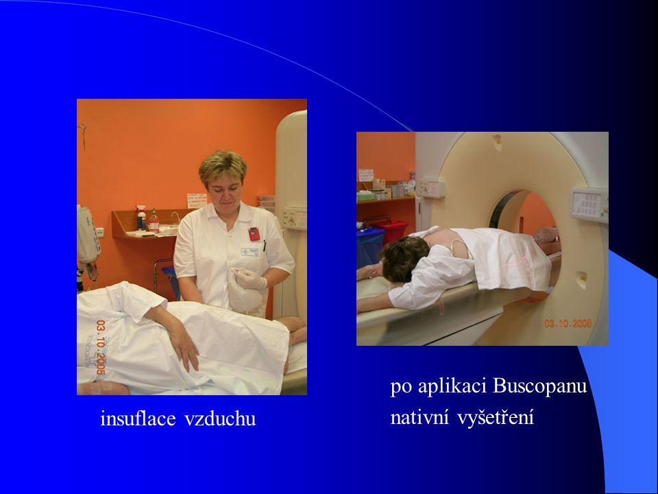 Závěr Od zahájení provozu (březen 2005) bylo dosud provedeno 9 virtuálních kolonoskopií.
