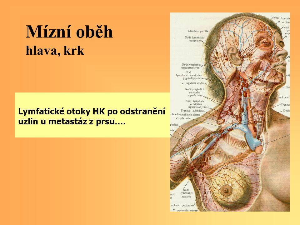 Mízní oběh hlava, krk Lymfatické otoky HK po odstranění uzlin u metastáz z prsu….