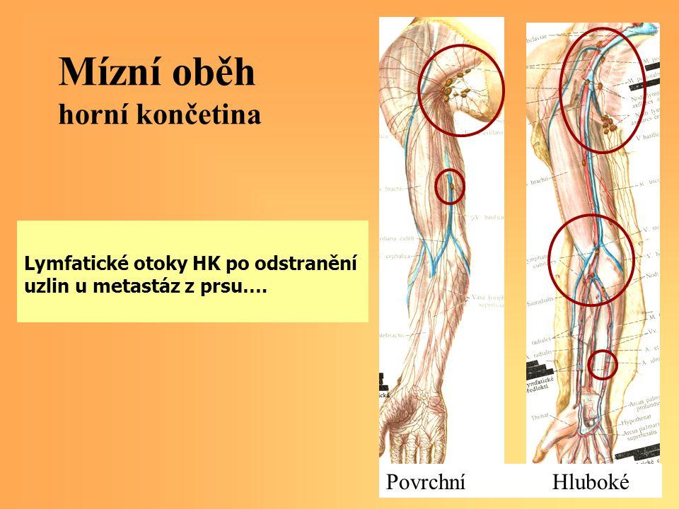 Mízní oběh horní končetina Lymfatické otoky HK po odstranění uzlin u metastáz z prsu…. Povrchní Hluboké