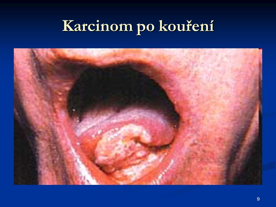 9 Karcinom po kouření