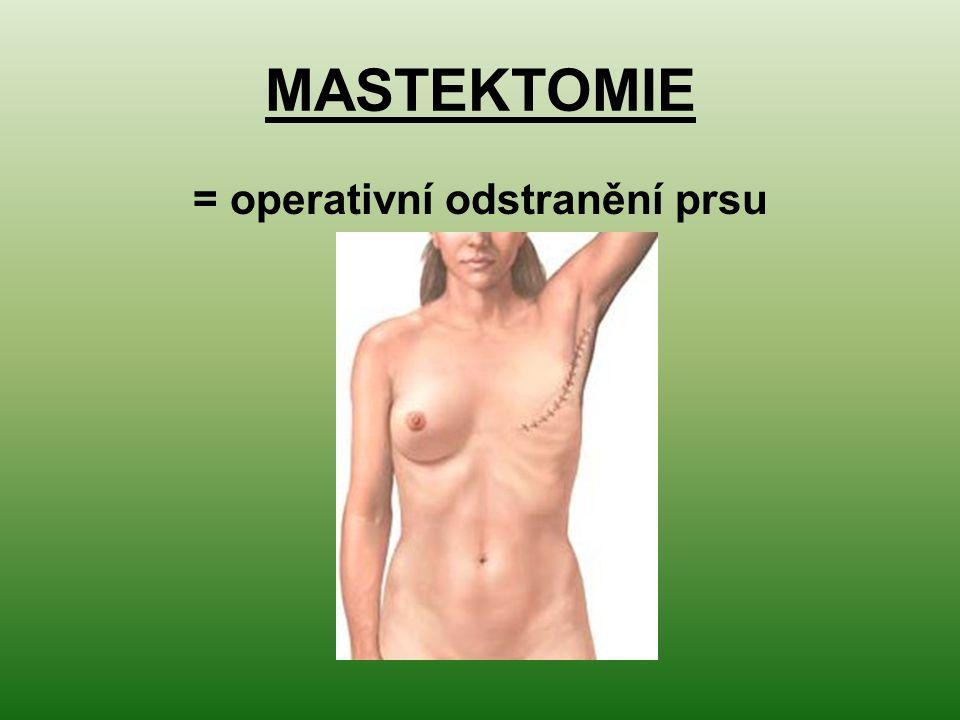 MASTEKTOMIE = operativní odstranění prsu