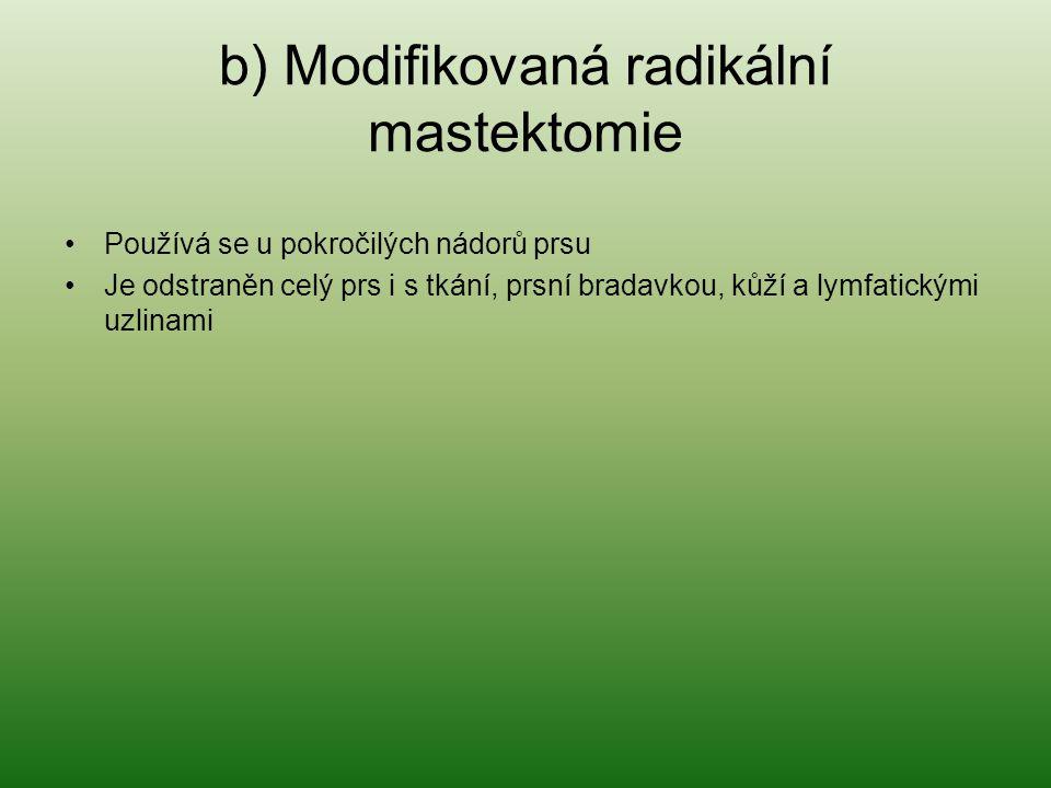 b) Modifikovaná radikální mastektomie Používá se u pokročilých nádorů prsu Je odstraněn celý prs i s tkání, prsní bradavkou, kůží a lymfatickými uzlin