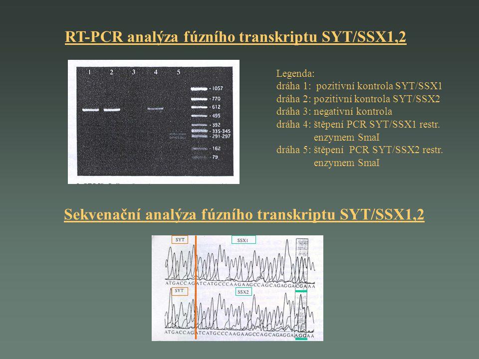 RT-PCR analýza fúzního transkriptu SYT/SSX1,2 Legenda: dráha 1: pozitivní kontrola SYT/SSX1 dráha 2: pozitivní kontrola SYT/SSX2 dráha 3: negativní ko