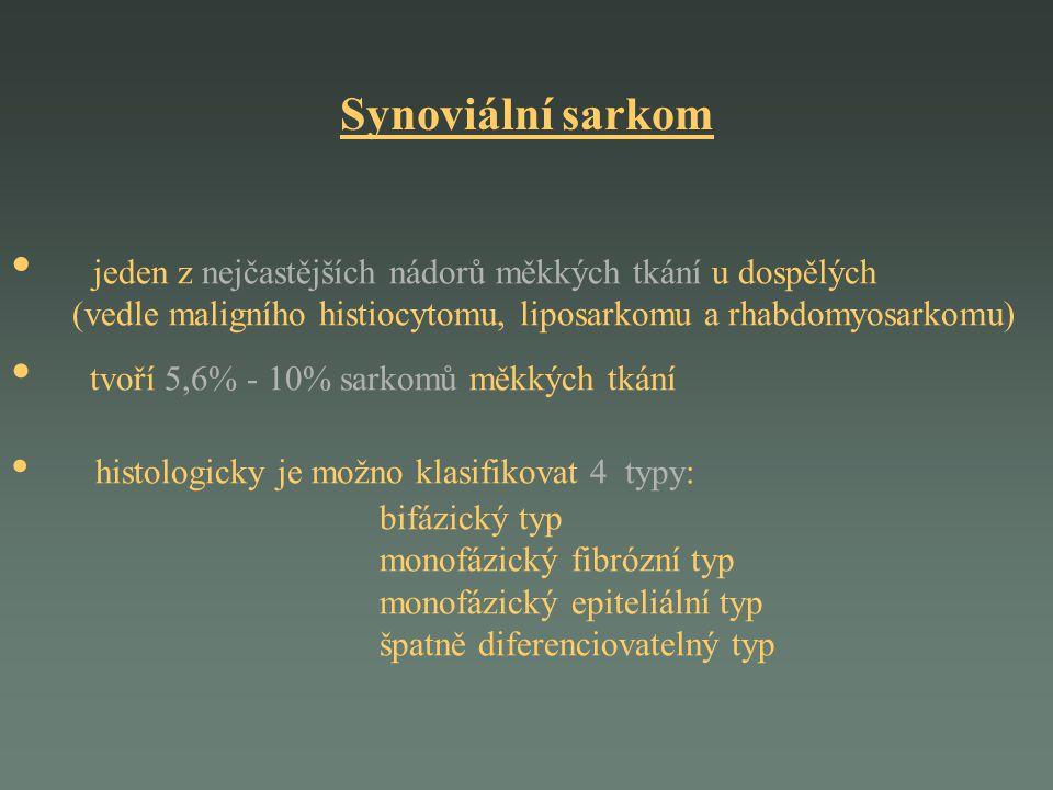 jeden z nejčastějších nádorů měkkých tkání u dospělých (vedle maligního histiocytomu, liposarkomu a rhabdomyosarkomu) tvoří 5,6% - 10% sarkomů měkkých