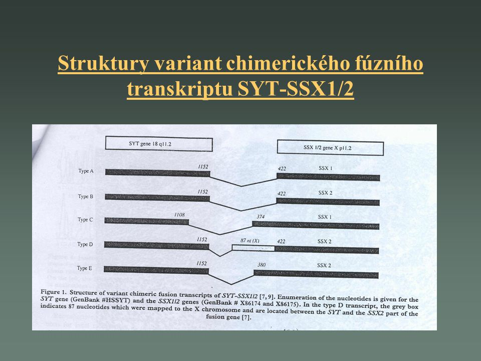 Strategie molekulárně-genetického vyšetření izolace RNA z tkáně nádoru (pro potvrzení diagnozy), krve nebo kostní dřeně(pro sledování MRD) RT-PCR: přepis informace z RNA do cDNA zachycení fúzního transkriptu SYT/SSX1,2 štěpení PCR produktu restrikčními enzymy, pro rozlišení fúzního partnera genu SYT určení citlivosti reakce pro využití při sledování minimální residuální choroby