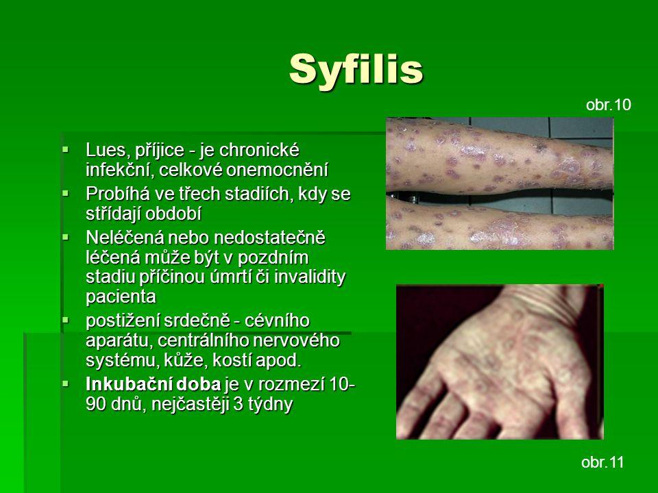 Syfilis  Lues, příjice - je chronické infekční, celkové onemocnění  Probíhá ve třech stadiích, kdy se střídají období  Neléčená nebo nedostatečně l