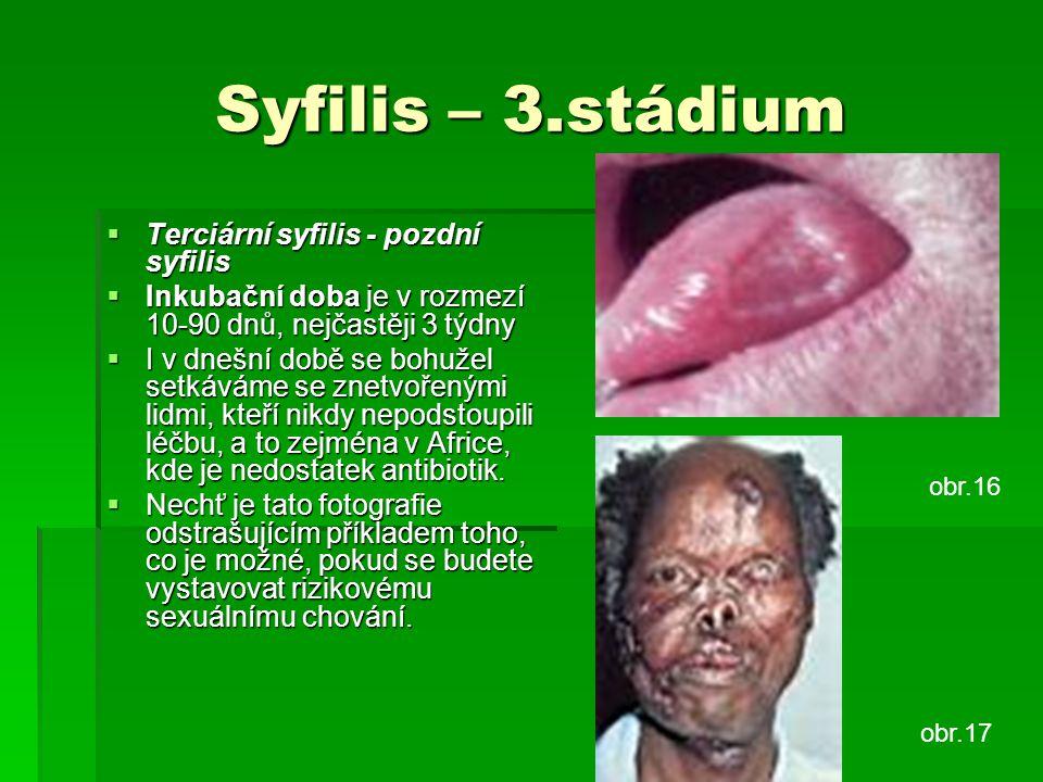 Syfilis – 3.stádium  Terciární syfilis - pozdní syfilis  Inkubační doba je v rozmezí 10-90 dnů, nejčastěji 3 týdny  I v dnešní době se bohužel setk