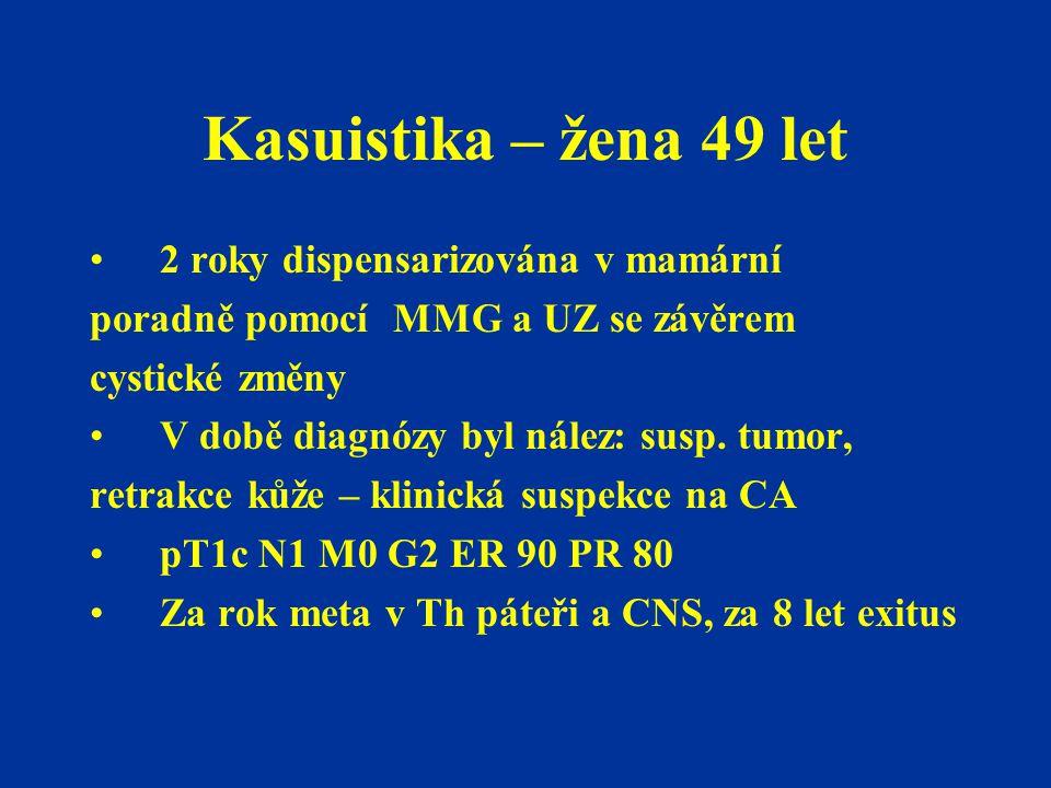 Kasuistika – žena 49 let 2 roky dispensarizována v mamární poradně pomocí MMG a UZ se závěrem cystické změny V době diagnózy byl nález: susp. tumor, r