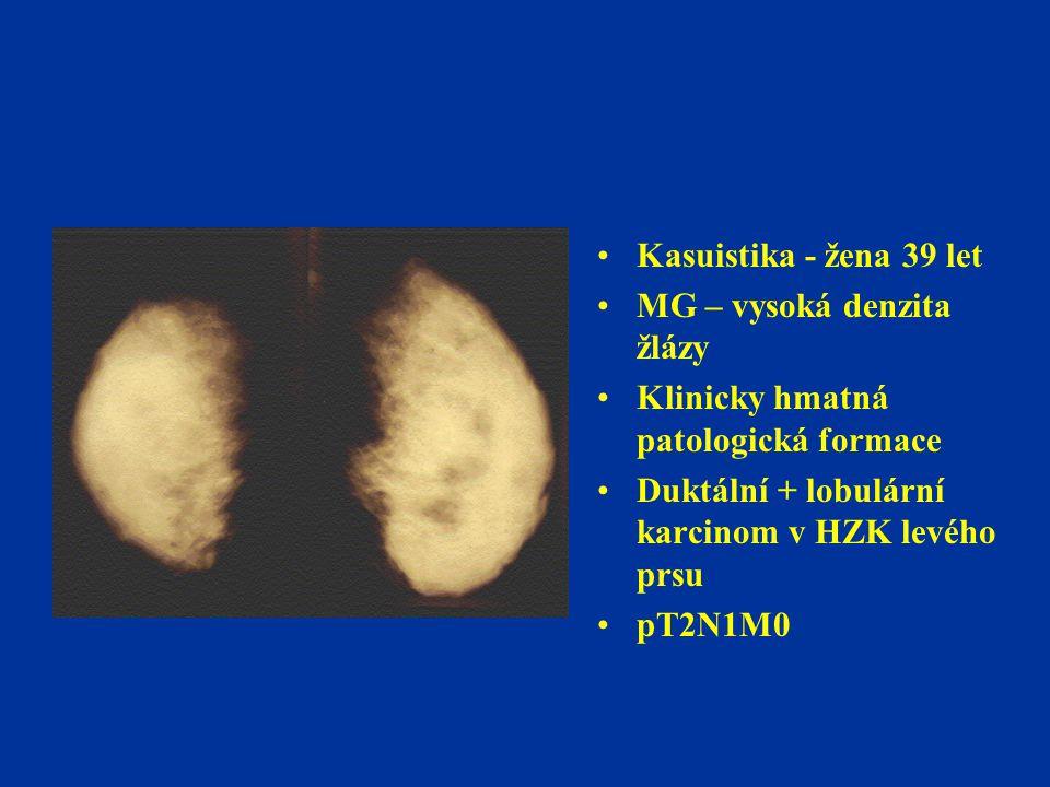 Kasuistika - žena 39 let MG – vysoká denzita žlázy Klinicky hmatná patologická formace Duktální + lobulární karcinom v HZK levého prsu pT2N1M0