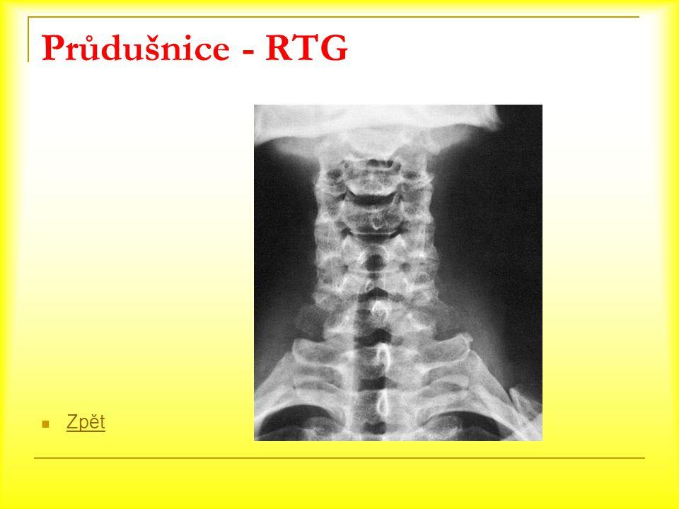 Průdušnice - RTG Zpět