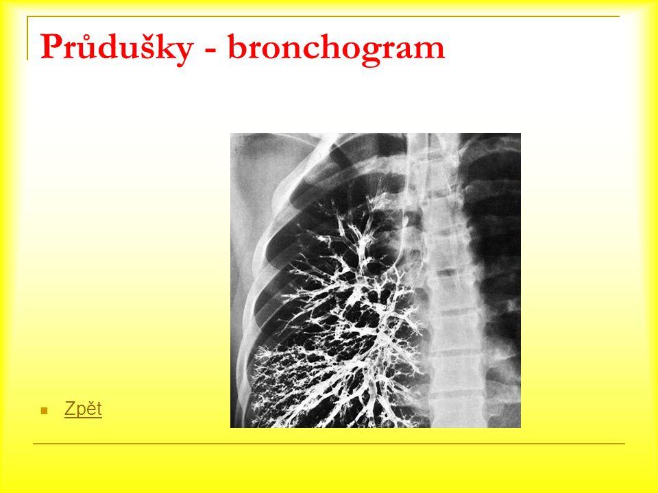 Průdušky - bronchogram Zpět