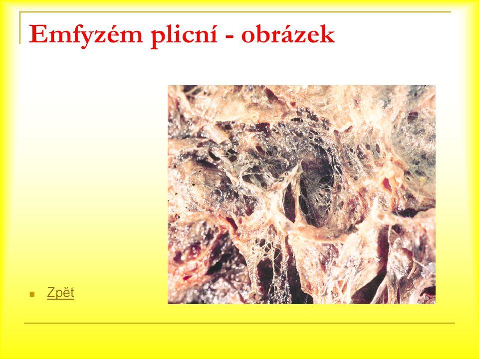 Emfyzém plicní - obrázek Zpět