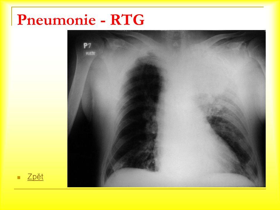 Pneumonie - RTG Zpět