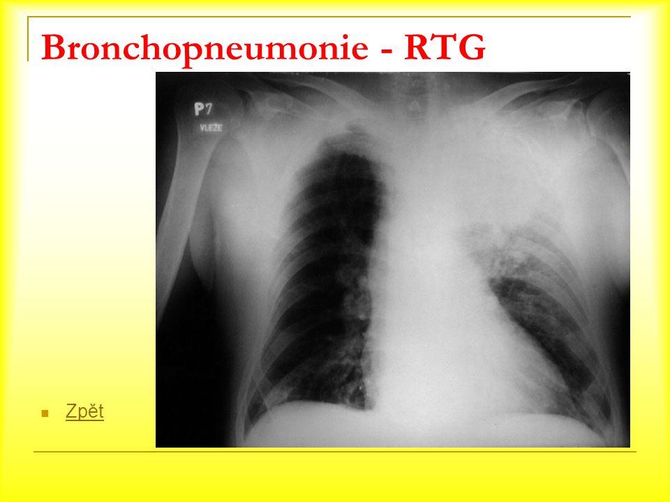Bronchopneumonie - RTG Zpět