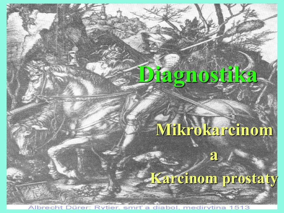 Diagnostika Mikrokarcinoma Karcinom prostaty