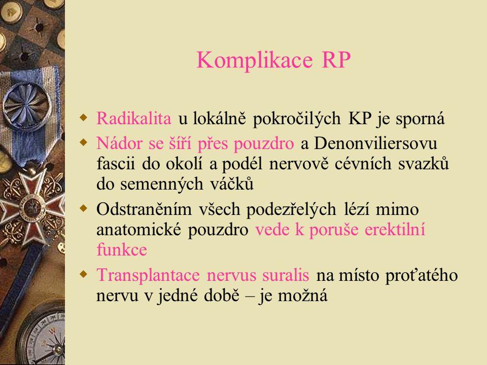 Komplikace RP  Radikalita u lokálně pokročilých KP je sporná  Nádor se šíří přes pouzdro a Denonviliersovu fascii do okolí a podél nervově cévních s