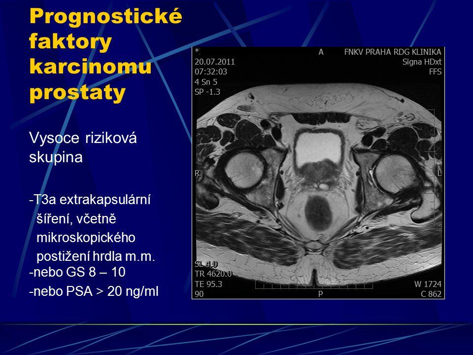 Prognostické faktory karcinomu prostaty Vysoce riziková skupina -T3a extrakapsulární šíření, včetně mikroskopického postižení hrdla m.m. -nebo GS 8 –