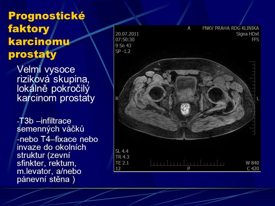 Prognostické faktory karcinomu prostaty Velmi vysoce riziková skupina, lokálně pokročilý karcinom prostaty - T3b –infiltrace semenných váčků -nebo T4–