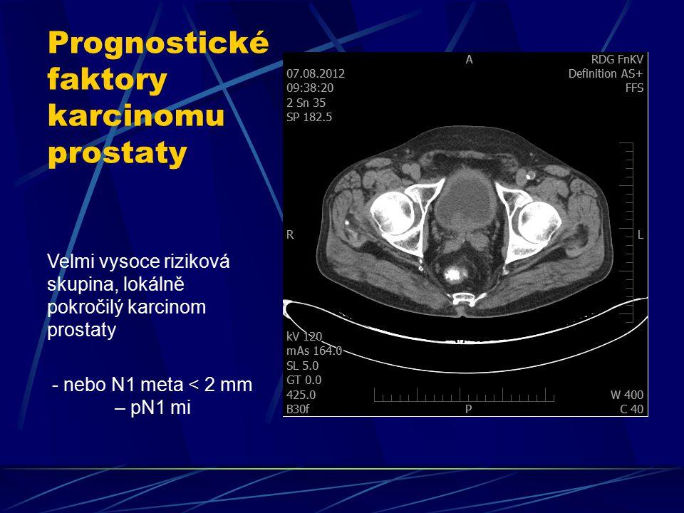 Prognostické faktory karcinomu prostaty Velmi vysoce riziková skupina, lokálně pokročilý karcinom prostaty - nebo N1 meta < 2 mm – pN1 mi