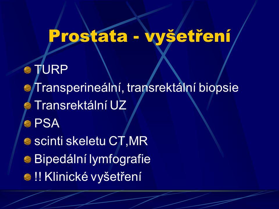 Prostata - vyšetření TURP Transperineální, transrektální biopsie Transrektální UZ PSA scinti skeletu CT,MR Bipedální lymfografie !! Klinické vyšetření