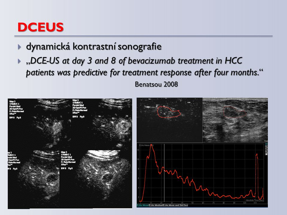 """DCEUS  dynamická kontrastní sonografie  """"DCE-US at day 3 and 8 of bevacizumab treatment in HCC patients was predictive for treatment response after"""