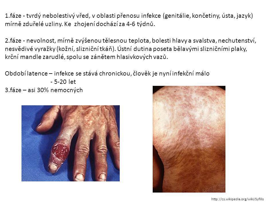 Zdroj textu: http://www.pohlavni-choroby.cz/syfilis