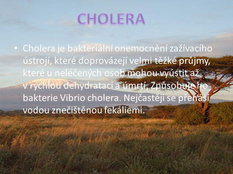 Cholera je bakteriální onemocnění zažívacího ústrojí, které doprovázejí velmi těžké průjmy, které u neléčených osob mohou vyústit až v rychlou dehydra