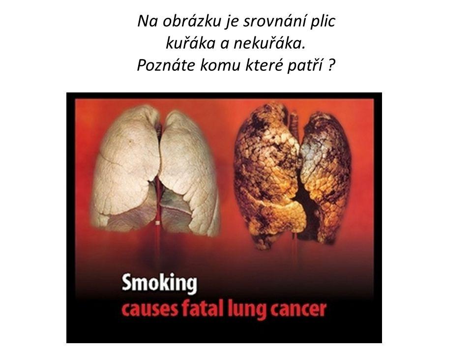 Na obrázku je srovnání plic kuřáka a nekuřáka. Poznáte komu které patří ?