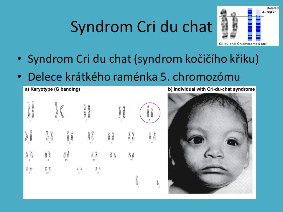 Syndrom Cri du chat Syndrom Cri du chat (syndrom kočičího křiku) Delece krátkého raménka 5. chromozómu