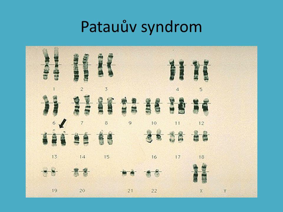 Patauův syndrom