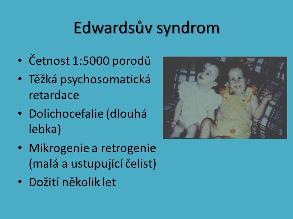 Edwardsův syndrom Četnost 1:5000 porodů Těžká psychosomatická retardace Dolichocefalie (dlouhá lebka) Mikrogenie a retrogenie (malá a ustupující čelis