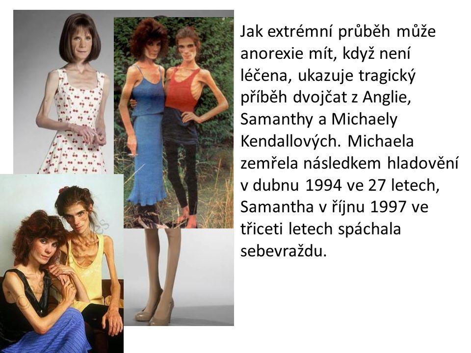 Jak extrémní průběh může anorexie mít, když není léčena, ukazuje tragický příběh dvojčat z Anglie, Samanthy a Michaely Kendallových. Michaela zemřela