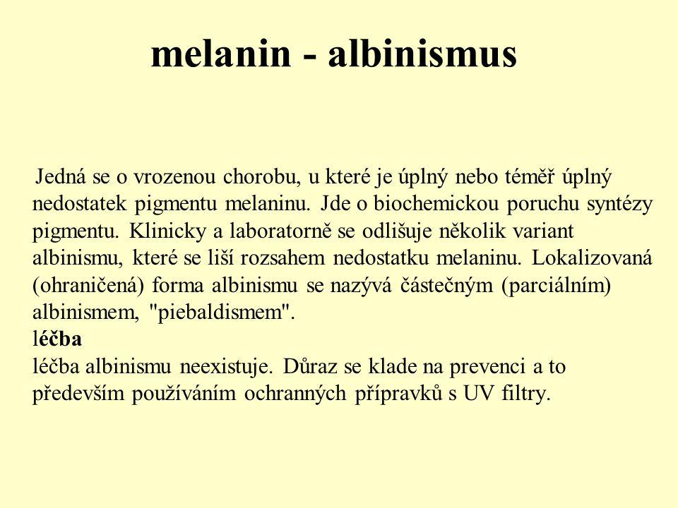 melanin - albinismus Jedná se o vrozenou chorobu, u které je úplný nebo téměř úplný nedostatek pigmentu melaninu. Jde o biochemickou poruchu syntézy p