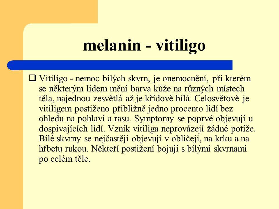 melanin - vitiligo  Vitiligo - nemoc bílých skvrn, je onemocnění, při kterém se některým lidem mění barva kůže na různých místech těla, najednou zesv